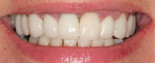 April Cosmetic Dentistry Glasgow after pic