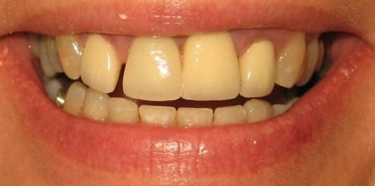 April Cosmetic Dentistry Glasgow before pic