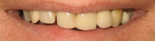 cosmetic dentist glasgow smile before pic 2
