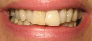cosmetic dentistry glasgow smile before pic 1