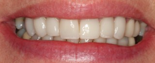 cosmetic dentistry glasgow smile after pic 1