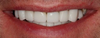cosmetic dentistry glasgow smile after pic 2