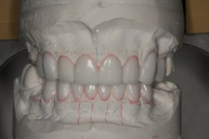 cosmetic dentistry glasgow smile design pic 1