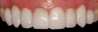 cosmetic dentistry glasgow smile after pic 3